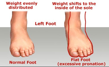 Treatment for Flat Feet - Therapies for